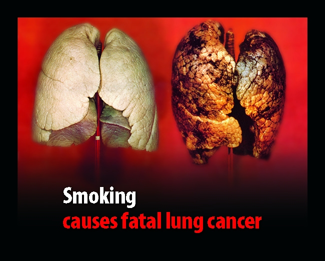 lung cancer9023r Hypnosis Quit Smoking
