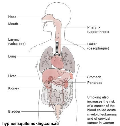 017689 You really should not even think about Major diseases caused by smoking because you will find that out any ways