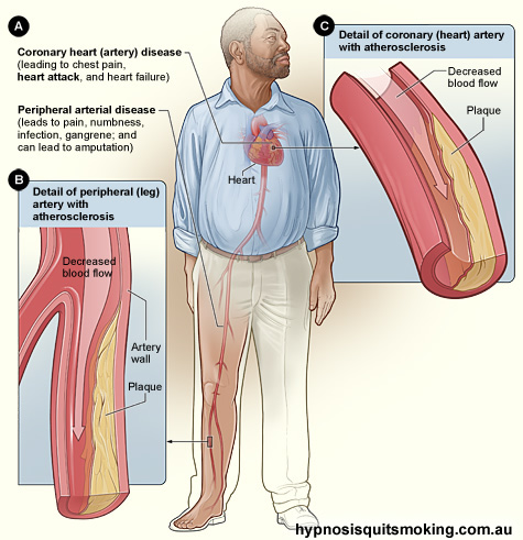 smoking heartdisease How do cigarettes damage a smoker's health?